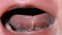 tongue-tie